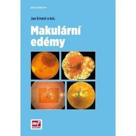 Ernest Jan a kolektiv: Makulární edémy